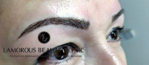 Lamorous Beauty Clinic Microblading