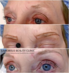 Lamorous Beauty Clinic Microblading